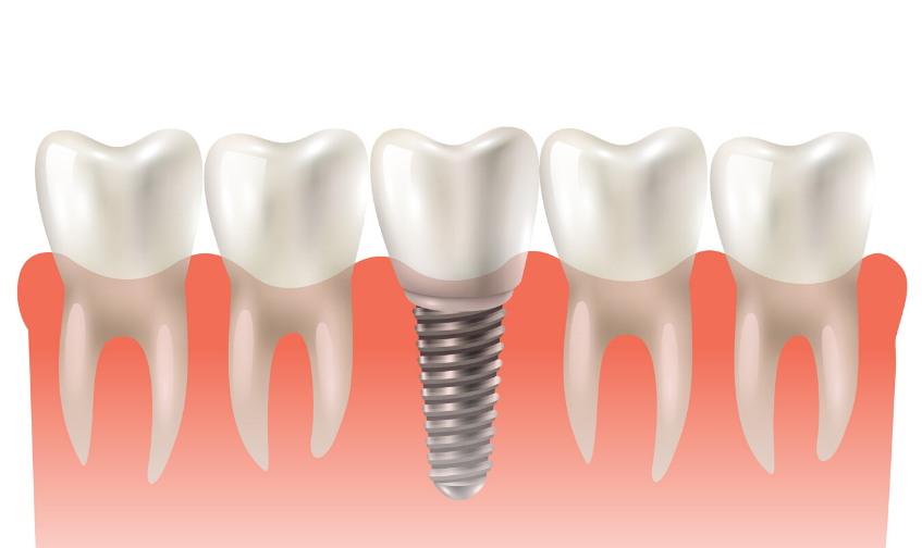 Why Dental Implants are the Best Option to Restore Missing Teeth