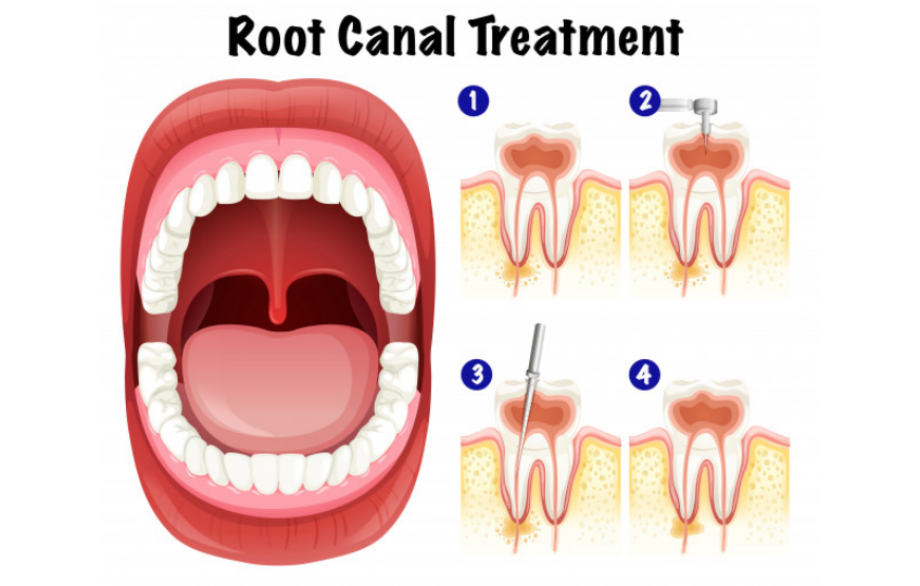 How To Know If You Need Root Canal Treatment: 6 Symptoms To Look For